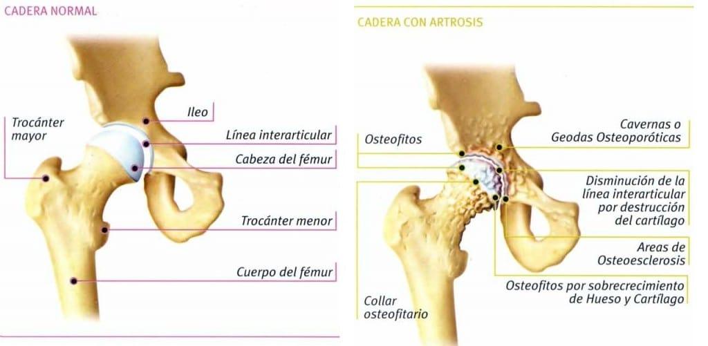 ARTROSIS DE CADERA ¿CÓMO PREVENIRLA? - Grow Clinic